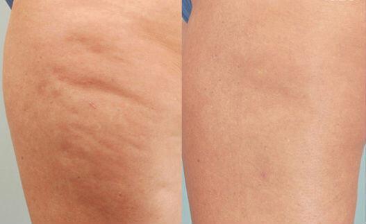 Cellulite : avant et après 10 séances de mésothérapie