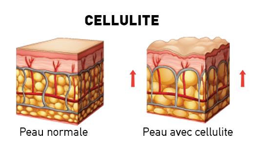 Peau normale et avec cellulite