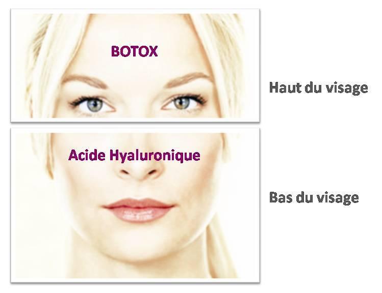 esthétique du visage peau botox acide hyaluronique dr leclercq beaulieu nice