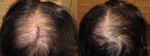 Chute des cheveux par mésothérapie : avant et après 8 séances