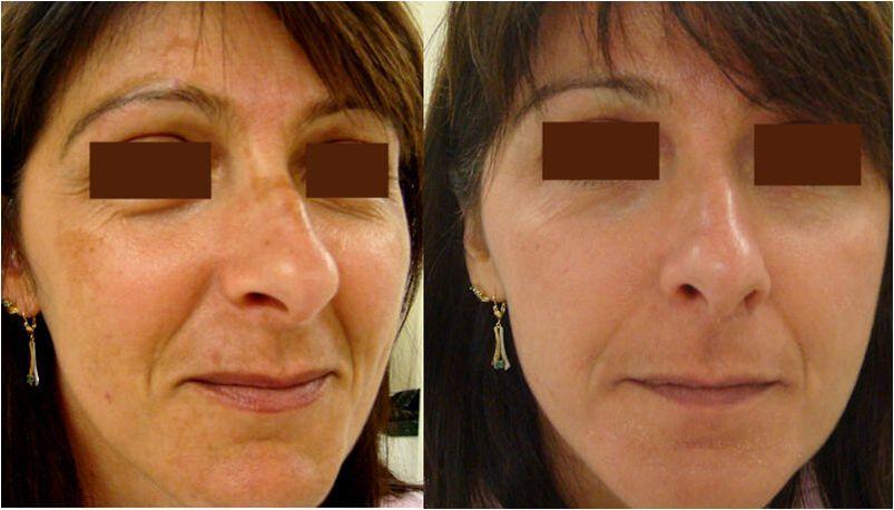 Peeling : avant séance et 15 jours après - Dr Leclercq